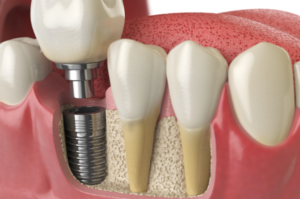 is dental implants safe
